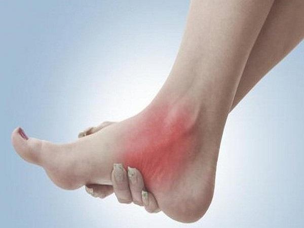 Cách xử lý khi bị bong gân cổ chân khi đá bóng